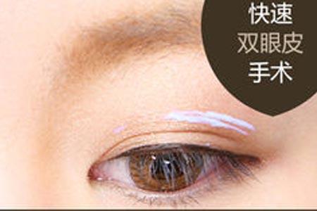 埋线双眼皮有什么优势啊