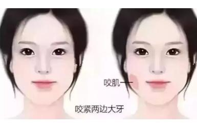 注射瘦脸打3次可以定型吗