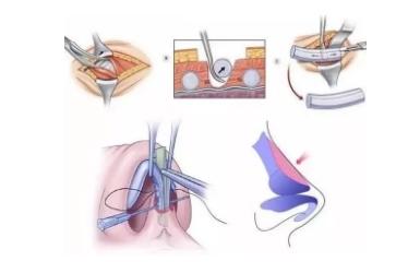 肋软骨隆鼻是什么?肋软骨隆鼻有什么好处?