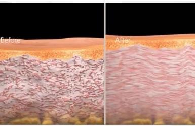 如何安全有效恢复乳晕粉嫩?