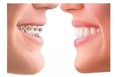 隐形牙套比传统牙套的优点