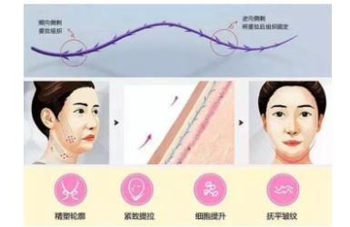 女人为什么要做面部线雕提升