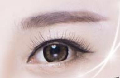 修复全切双眼皮哪里修复好