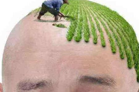 想做植发,植发的存活率到底高不高啊