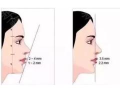 硅胶假体垫下巴的优势是