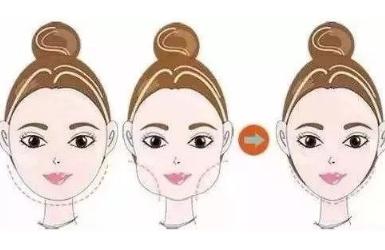 面部整形6大原则助你科学设计美