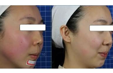 季节性皮肤过敏怎么办?