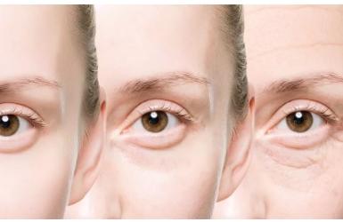 眼部抗衰的重要性