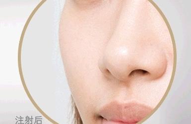 面部自体脂肪填充的三大优势