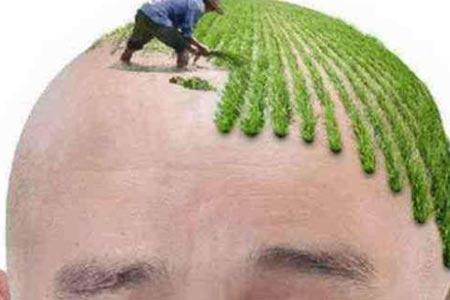 年轻人脱发怎么办,美莱植发来帮你