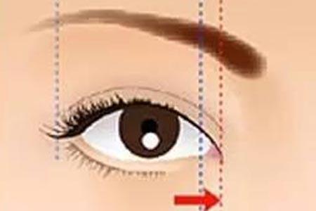 开眼角手术要多长时间才能恢复自然