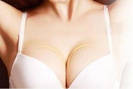 上海做假体隆胸手术有哪些优势