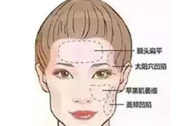 美莱玻尿酸帮你维持年轻水嫩精致脸