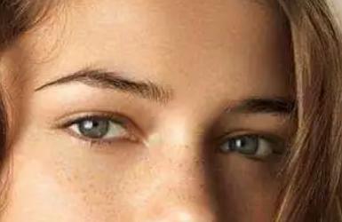 雀斑的治疗方法是什么?