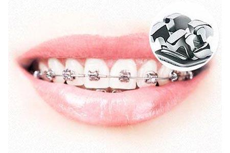 牙齿不整齐做矫正大概需要多少钱