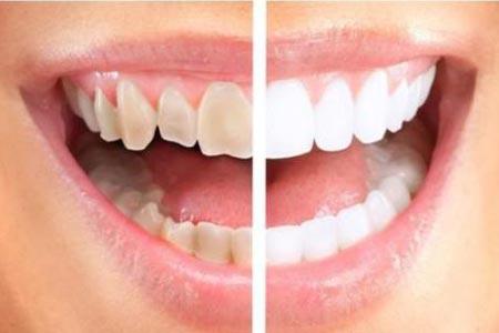 有什么方法可以让牙齿变白一些