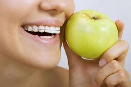 成年人做牙齿矫正哪种方法比较好