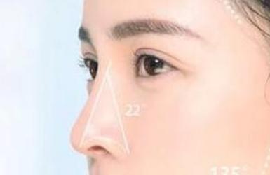 有鼻炎可以做隆鼻吗