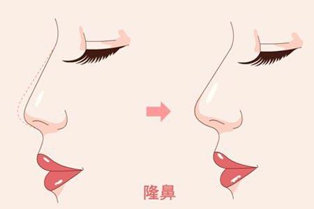 自体软骨隆鼻术后多久可以化妆