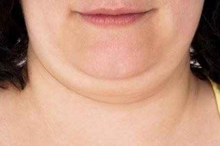 双下巴吸脂减肥术后会不会反弹