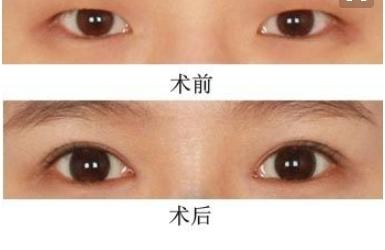 眼科医院开眼角手术价格