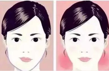 面部不对称是什么原因