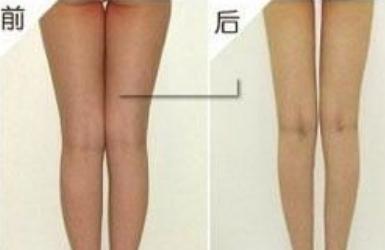 上海茸城医院腿上抽脂大概多少钱