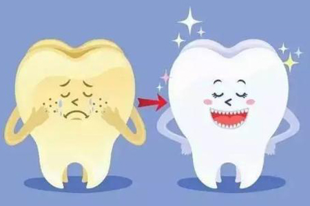 什么方法可以快速有效的美白牙齿