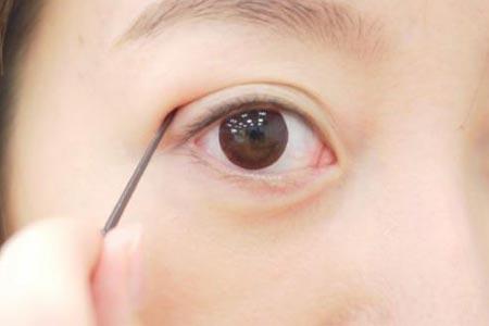 为什么做了双眼皮还要开眼角