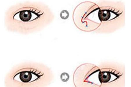 做开眼角整形手术会不会留下后遗症
