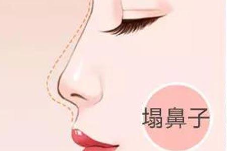 自体软骨隆鼻的过程是怎么样的