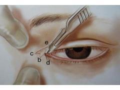 做开眼角手术要恢复多久