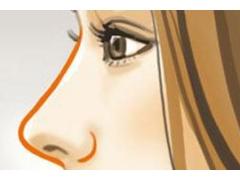自体软骨隆鼻整形有什么优势