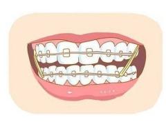地包天牙齿矫正价格是多