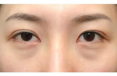 做眼袋综合手术多少钱