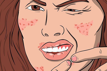 激光祛痘真的能有效的祛痘吗
