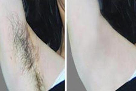 腋下脱毛用什么方法效果比较好
