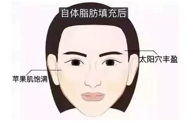 大脸可以做脂肪填充吗?