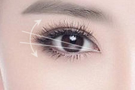 开眼角整形术后需要多久才能恢复自然