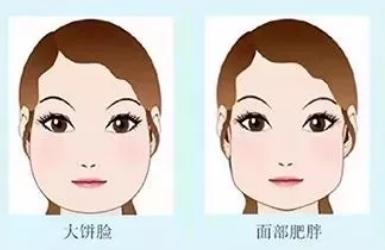 瘦脸针如何让你变美?
