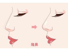 韩式隆鼻整形术后怎么护