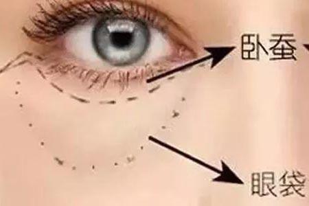 做祛眼袋手术会有风险吗