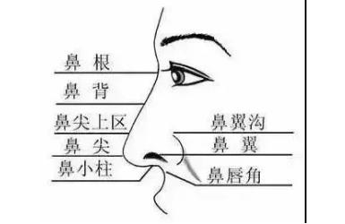 隆鼻就是垫高鼻子吗