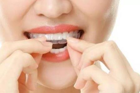 成年人做牙齿矫正要多少钱