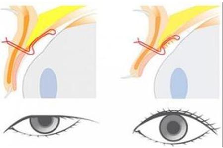 上睑下垂矫正术后怎么才能更快的消肿
