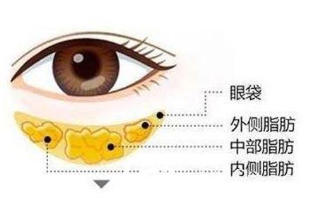 眼袋大是什么原因造成的,怎么消除