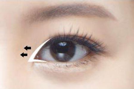 开眼角整形术后眼睛自然吗