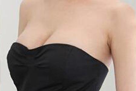 做假体隆胸应该怎样选择假体