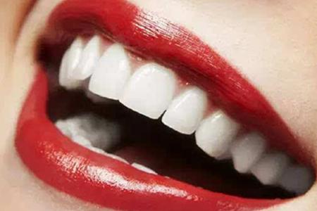 冷光美白牙齿一次费用多少钱