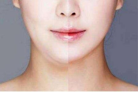 做脸部抽脂减肥手术费用要多少钱